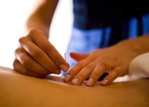 Typical Acupuncture Treatment